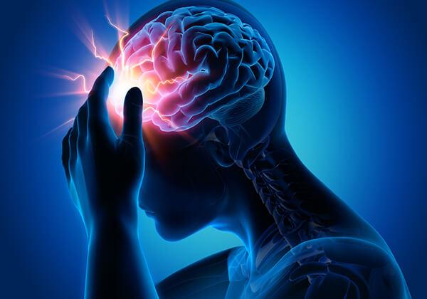 Migraine Facts